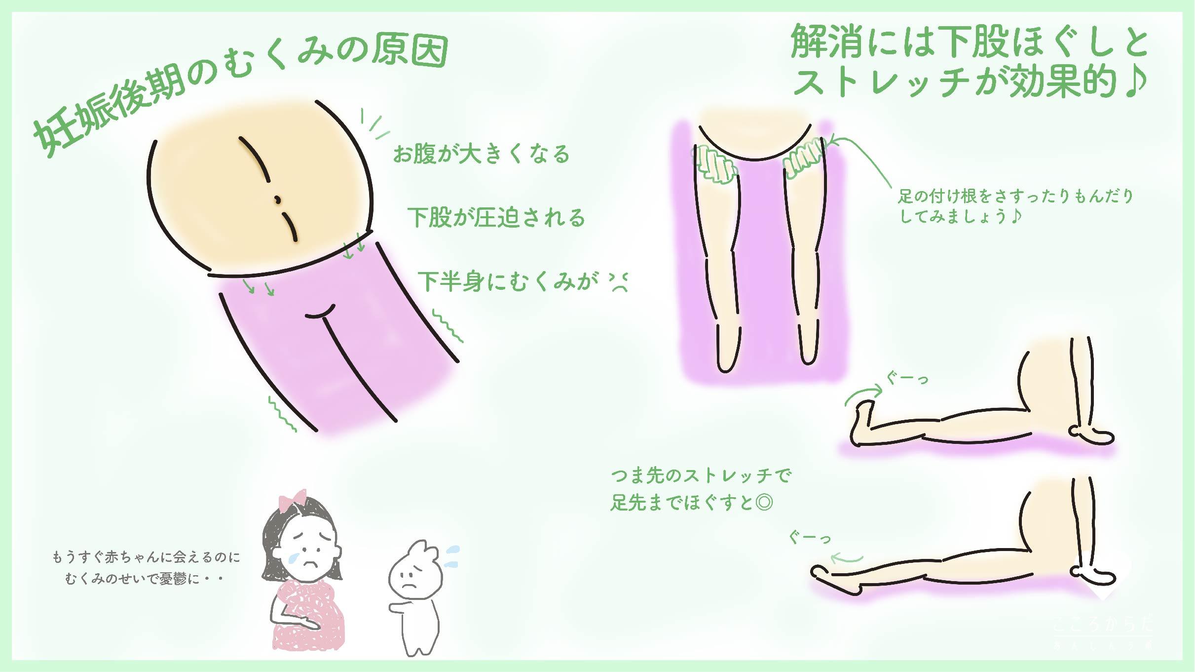 妊婦 足 の むくみ